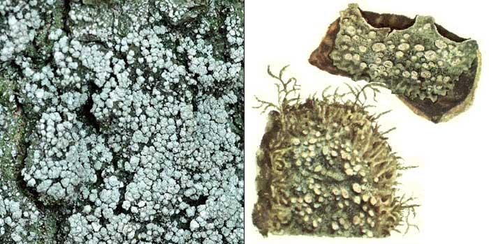 Пертузария шариконосная — Pertusaria globulifera